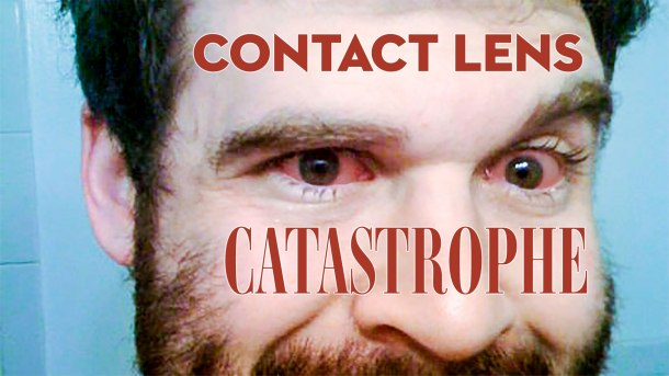 Neal Lynch contact lens bloodshot eyes